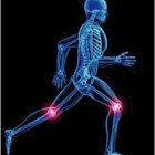 Les causes de l'arthrose