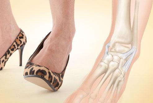 Comment sont traitées l'arthrose de la cheville et du pied ?