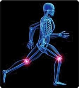 Quelles sont les causes de l'arthrose ?
